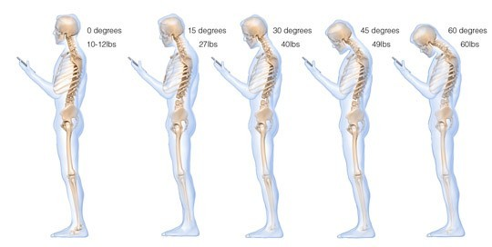 cell phone use can cause neck damage